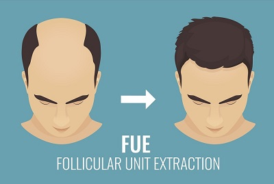 Follicular Unit Extraction (FUE) in Mississauga
