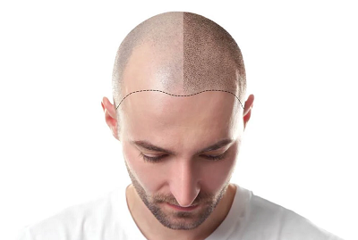 Scalp Micropigmentation (SMP)  Mississauga