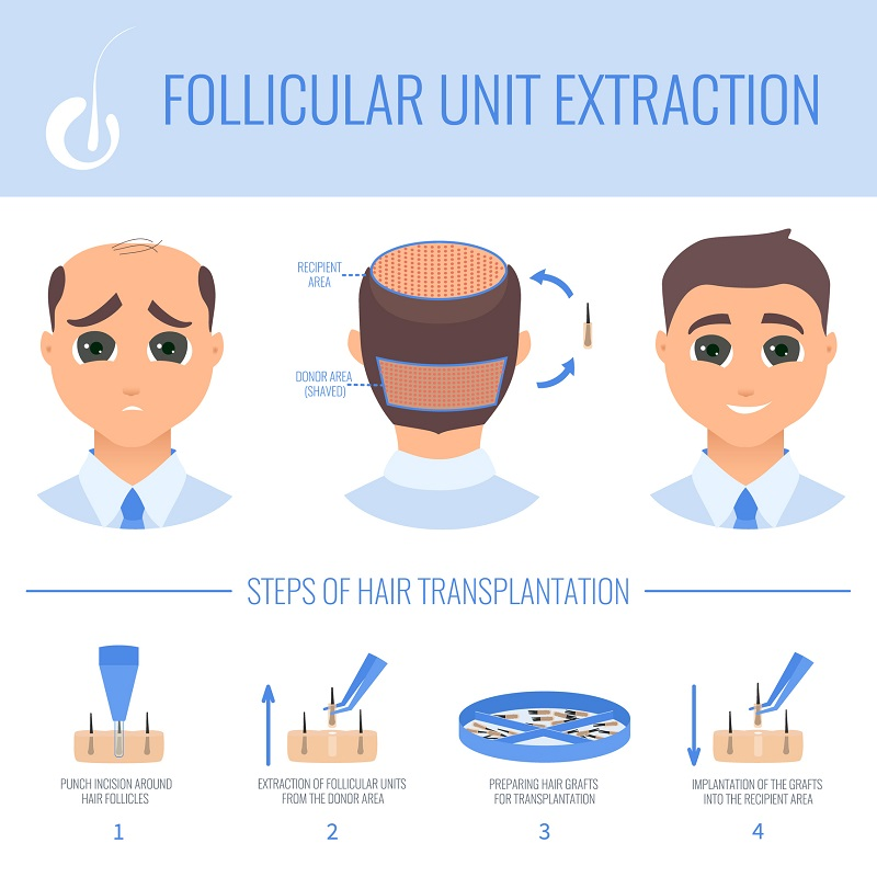 FUE Hair Transplant Center